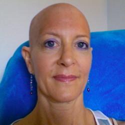 Karen after starting radiation June 30, 2011